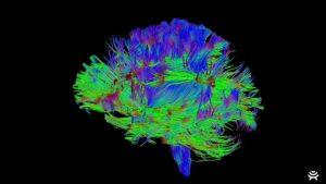Brain Surgery Solution Brings Canadian High Tech Company Life Science Award