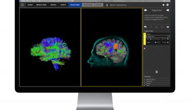 Brain Surgery Solution Brings Canadian High Tech Company Life Science Award
